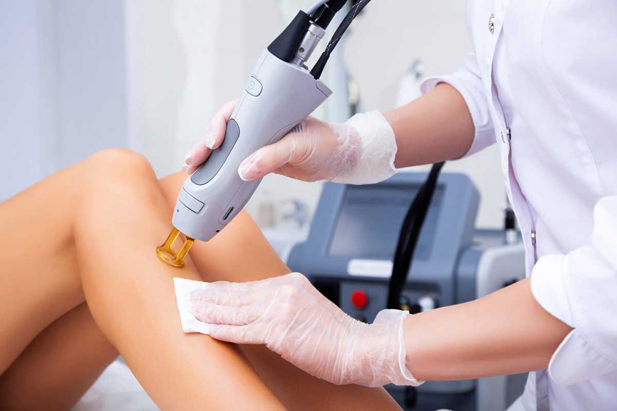 The Top 8 Benefits of Laser Hair Removal Treatment