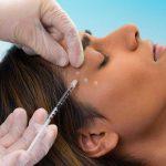 A Botox treatment procedure