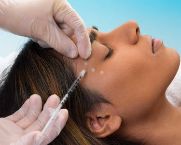 A Botox treatment procedure
