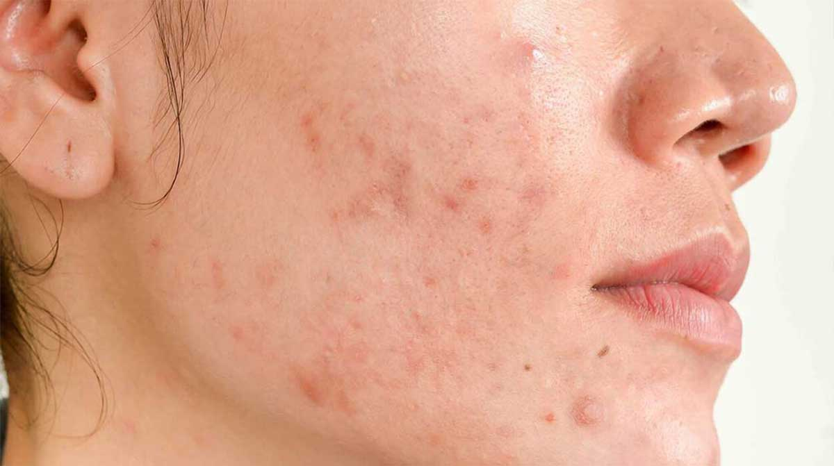Hormonal Imbalance Result In Acne