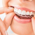 What Are Aligners