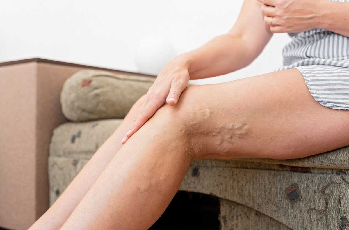 Causes of Swollen Blood Vessels